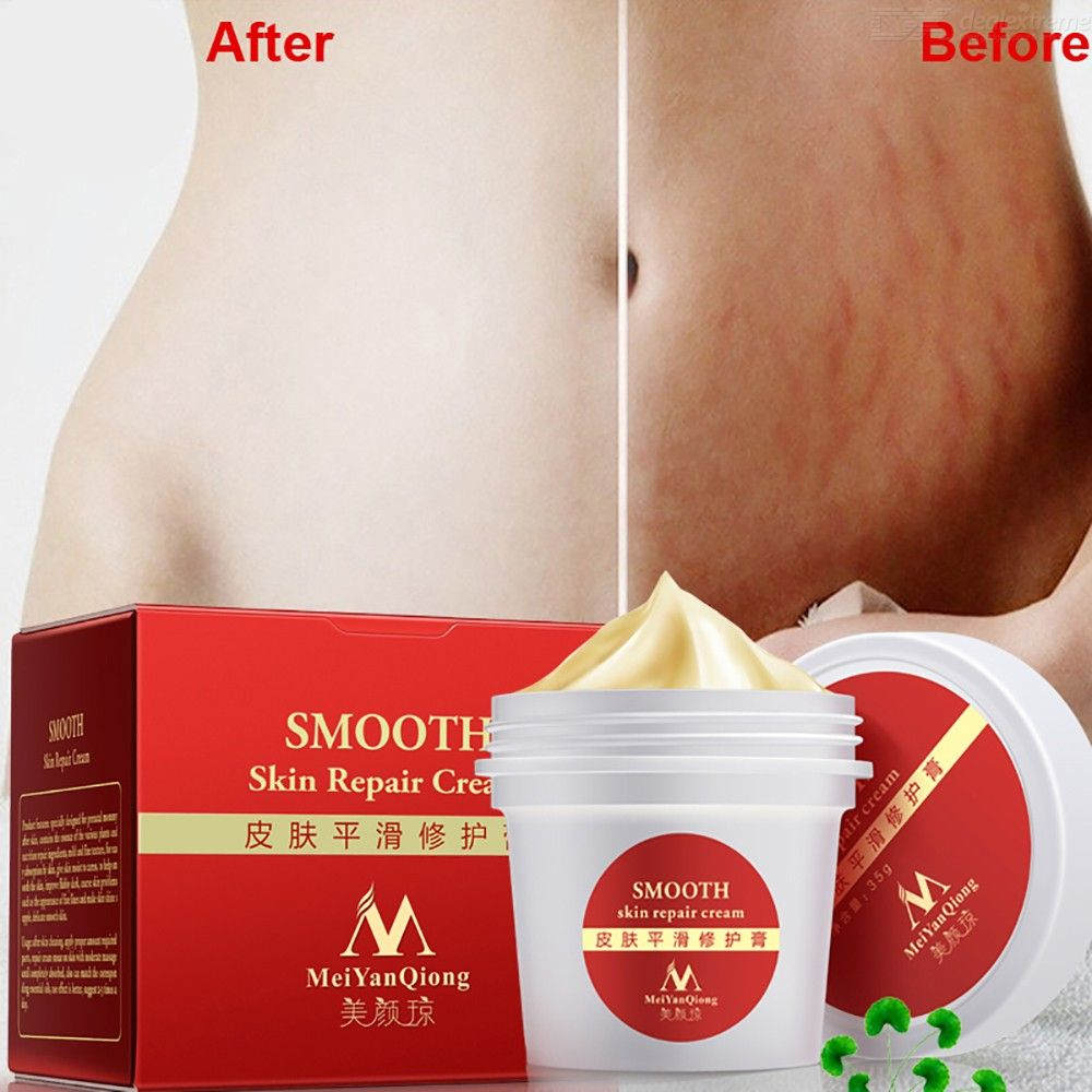 Scar Removal Scream Stretch Marks Buster With Centella Extract