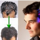 Electric-Wireless-Infrared-Ray-Growth-Laser-Anti-Hair-Loss-Hair-Growth-Care-Vibration-Head-Massage-Comb-Massager-Head-Z3